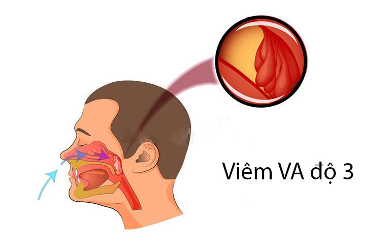 Viêm VA độ 3 là trường hợp nặng của bệnh viêm VA cấp tính gây ra nhiều triệu chứng bất lợi cho sức khỏe tổng thể nói chung và hệ hô hấp nói riêng