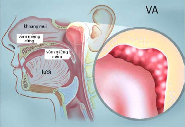 Viêm VA mãn tính xảy ra do sự tái diễn nhiều lần của bệnh viêm VA cấp tính