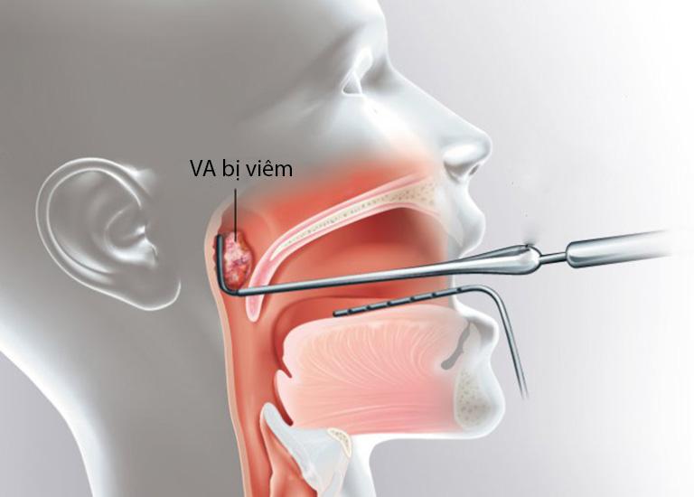 Nạo VA được chỉ định đối với các trường hợp điều trị bằng thuốc không có hiệu quả hoặc cơ thể có nguy cơ xuất hiện biến chứng