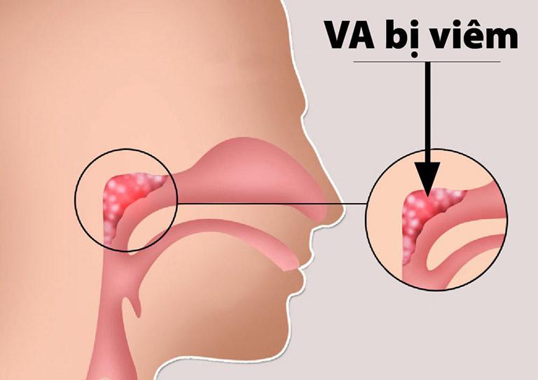 Tìm hiểu những thông tin liên quan đến bệnh VA ở trẻ nhỏ