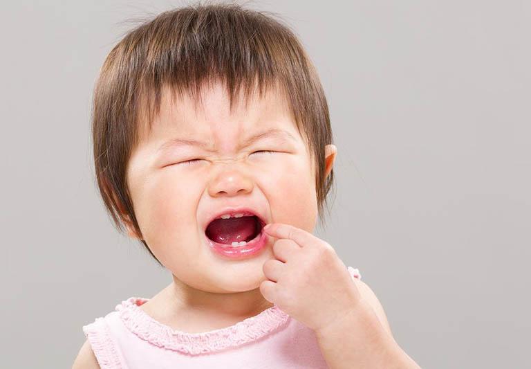 Bệnh amidan khiến trẻ bị đau rát cổ họng kéo dài