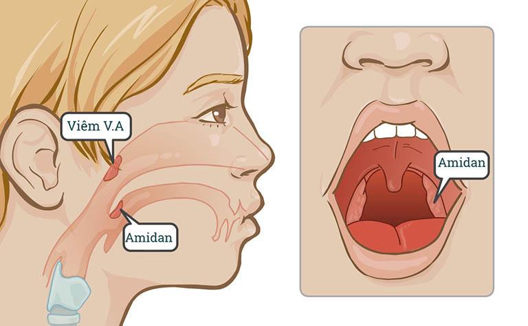 Viêm VA và viêm amidan có giống nhau không? Cách phân biệt