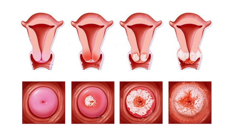 Tìm hiểu các giai đoạn của bệnh ung thư cổ tử cung và phác đồ điều trị tương ứng
