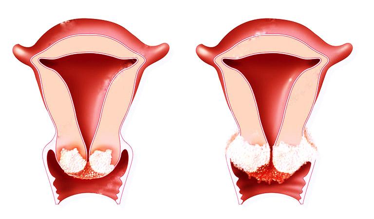 Ung thư cổ tử cung giai đoạn cuối (giai đoạn di căn) là thời điểm mà các tế bào ung thư đã tấn công mạnh mẽ và di căn đến một số cơ quan khắp cơ thể