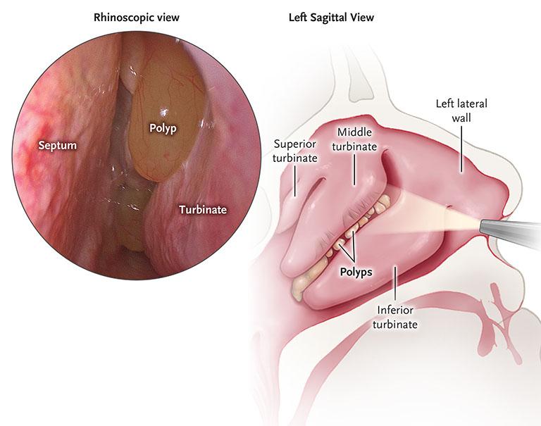 Polyp mũi nếu không tiến hành điều trị sớm hay việc chữa trị không đúng cách có thể khiến bệnh tình trở nên nghiêm trọng hơn