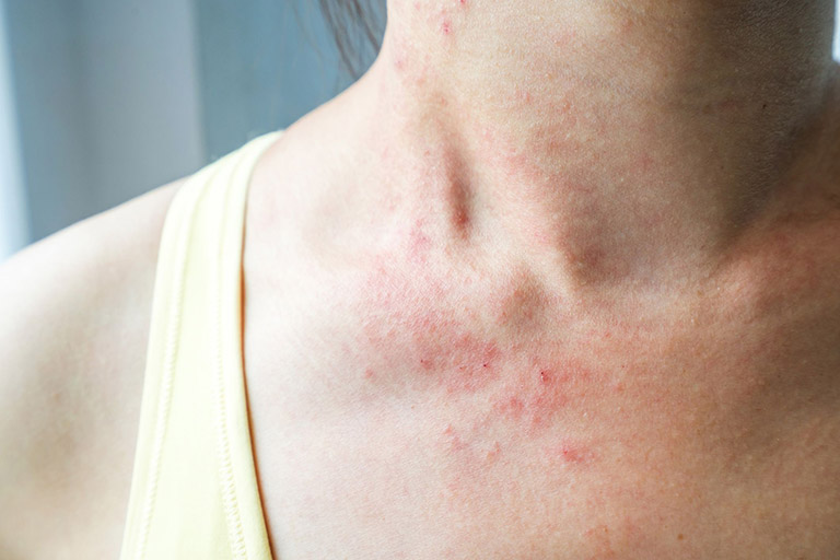 Trên da xuất hiện rải rác các nốt đỏ là một trong những dấu hiệu nhận biết bệnh sốt xuất huyết ở người lớn bên cạnh cơn sốt cao