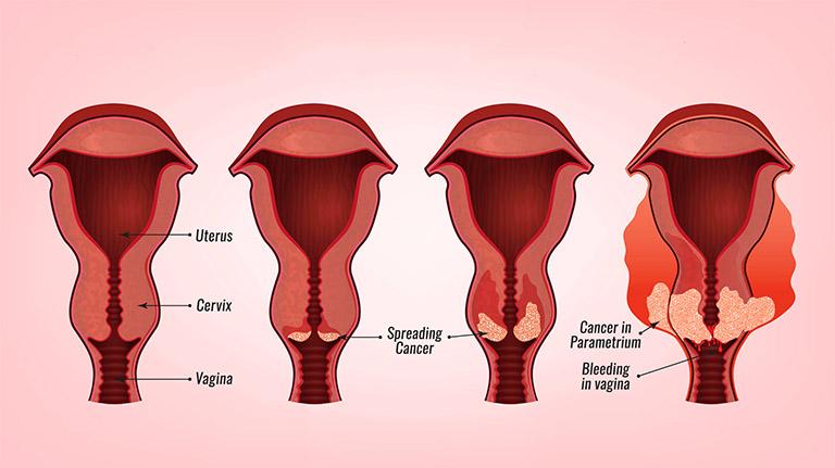 Chị em phụ nữ có thể đối diện với trường xấu nhất là tử vong do bệnh ung thư cổ tử cung giai đoạn cuối