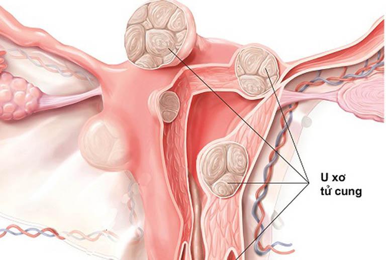 U xơ tử cung ác tính có chữa được không? nguy hiểm không?