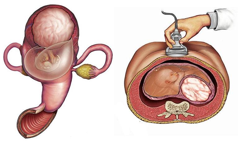 Khối u xơ có kích thước to có thể chèn ép nhiều lên nhau thai khiến cho việc dẫn truyền các chất dinh dưỡng nuôi thai nhi gặp trở ngại