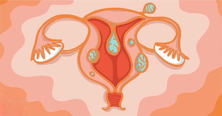 Chuyên gia giải đáp vấn đề bệnh u xơ tử cung có nguy hiểm không