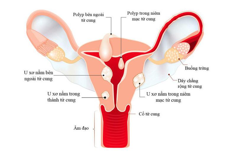 Vị trí của những khối u trong tử cung của người phụ nữ