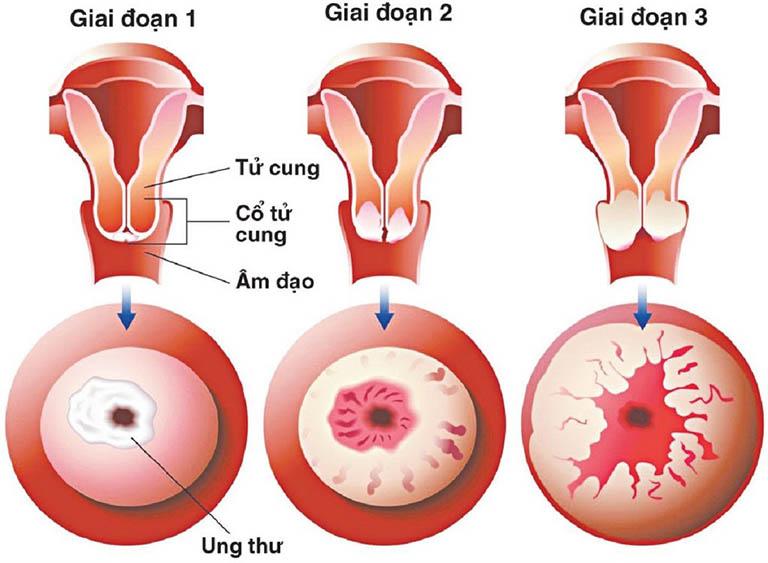Bệnh nhân bị ung thư cổ tử cung có thể khỏi bệnh nếu sớm phát hiện và chữa trị trong giai đoạn đầu