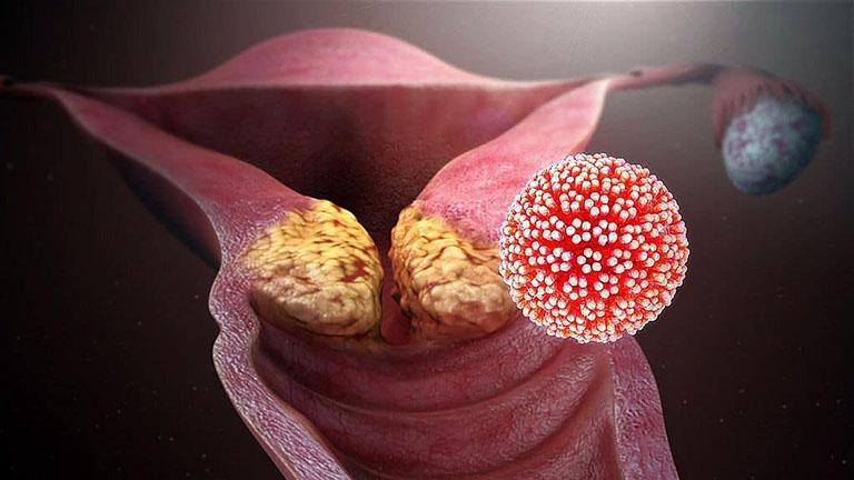 Ung thư cổ tử cung là hiện tượng tăng sinh quá mức của tế bào trong cổ tử cung và hình thành nên các khối u