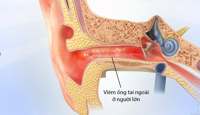 Nắm được các thông tin cơ bản về bệnh viêm ống tai ngoài ở người lớn sẽ giúp người bệnh chủ động hơn trong việc điều trị và phòng ngừa biến chứng