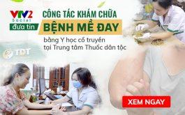 VTV2 Chất lượng cuộc sống đưa tin công tác điều trị mề đay, mẩn ngứa, dị ứng tại Trung tâm Thuốc dân tộc