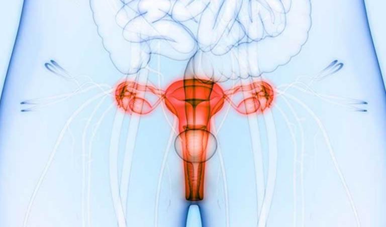 Xạ trị trong điều trị bệnh ung thư cổ tử cung