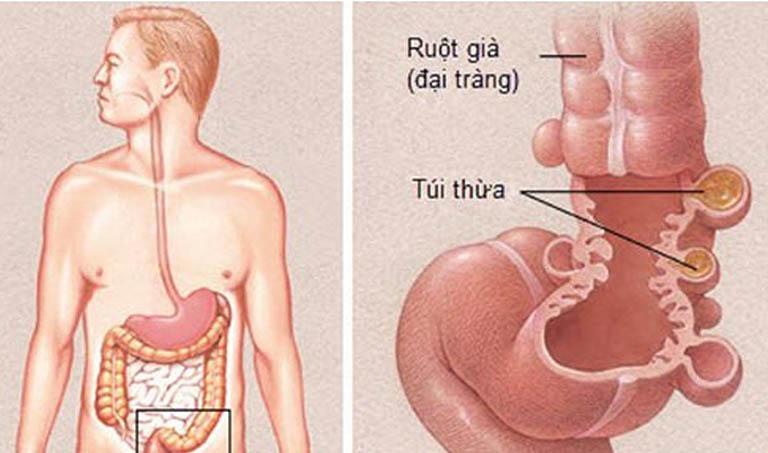 Bệnh viêm túi thừa đại tràng hình thành khi túi thừa đại tràng có dấu hiệu nhiễm khuẩn hoặc viêm