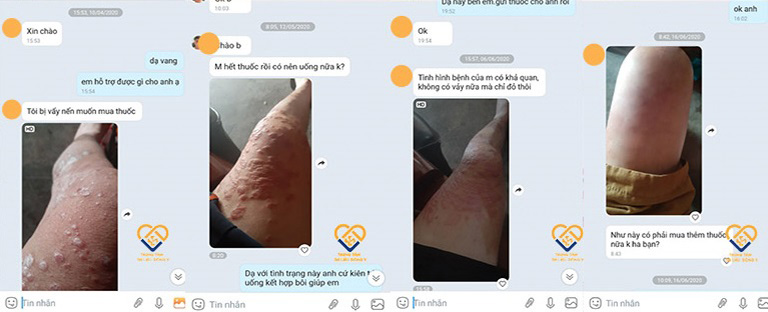 Anh Lâm thường xuyên gửi hình ảnh trong quá trình điều trị tới Trung tâm Da liễu Đông y Việt Nam để các bác sĩ nắm rõ được tình trạng của mình (ảnh do Trung tâm Da liễu Đông y Việt Nam cung cấp)