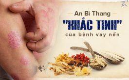 An Bì Thang trị vảy nến