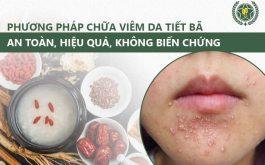 Sự kết hợp Đông Tây y giúp điều trị viêm da tiết bã an toàn, hiệu quả