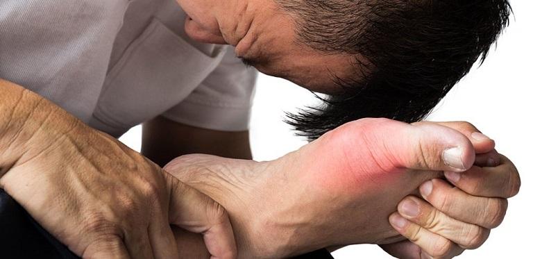Gout gây ra những cơn đau đột ngột ở khớp ngón chân cái