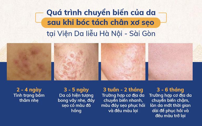 Sự chuyển biến của làn da sau khi tách đáy sẹo rỗ tại Viện Da liễu Hà Nội - Sài Gòn