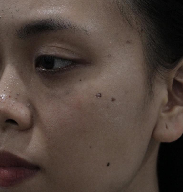 Dù điều trị rất nhiều nhưng tình trạng mụn trứng cá trên da của chị Trang vẫn không thuyên giảm