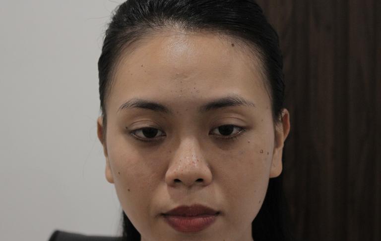 Làn da đen sạm, sần sùi vì mụn của chị Trang