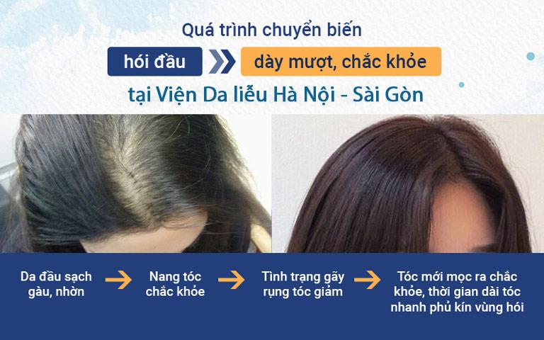 Quá trình chuyển biến của mái tóc sau khi sử dụng giải pháp kết hợp của Viện Da liễu Hà Nội - Sài Gòn