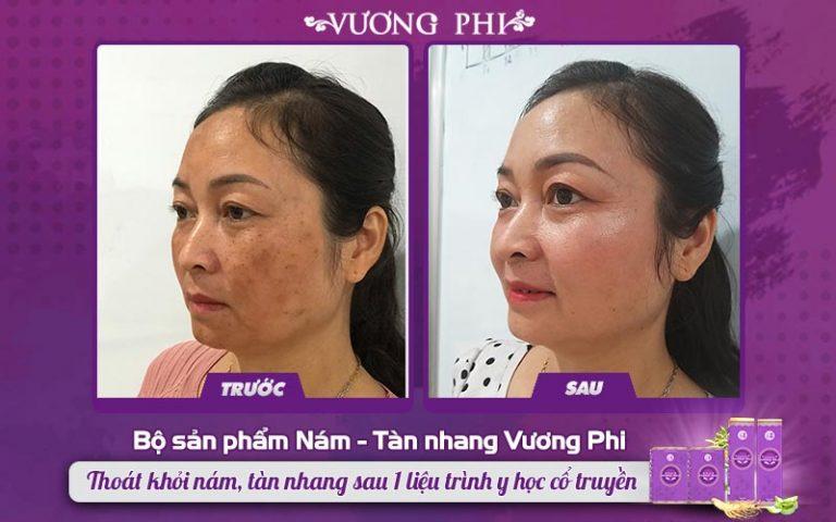 Cô Hồng Vân cải thiện nám lâu năm tới 70% khi mới sử dụng được 2/3 liệu trình Vương Phi
